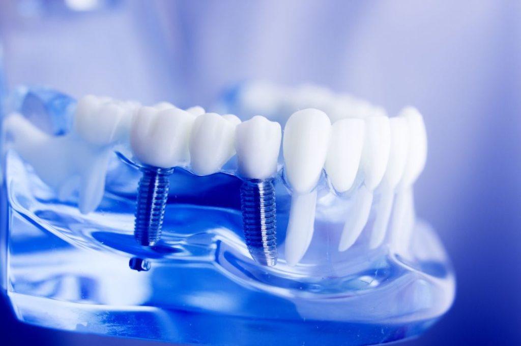 Статья Имплантация в стоматологии