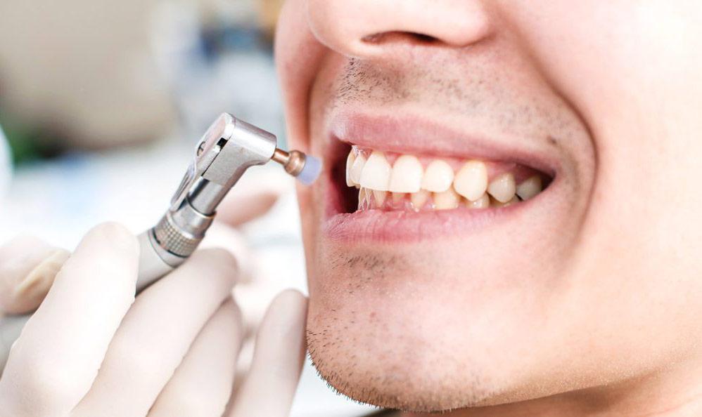 Статья Для чего необходима профессиональная гигиена полости рта